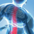 EFFECTIVELY MANAGING BACK PAIN