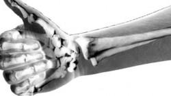 healthcheckbetterbones